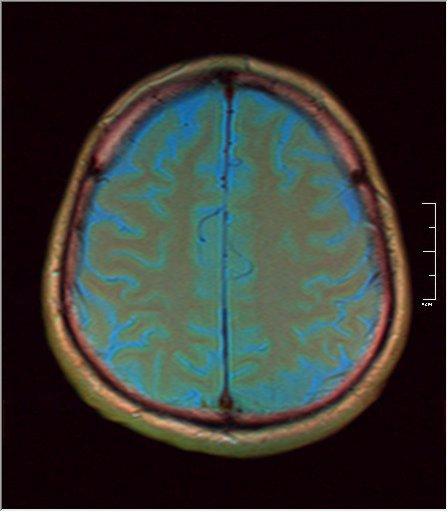 Brain MRI 0211 04.jpg