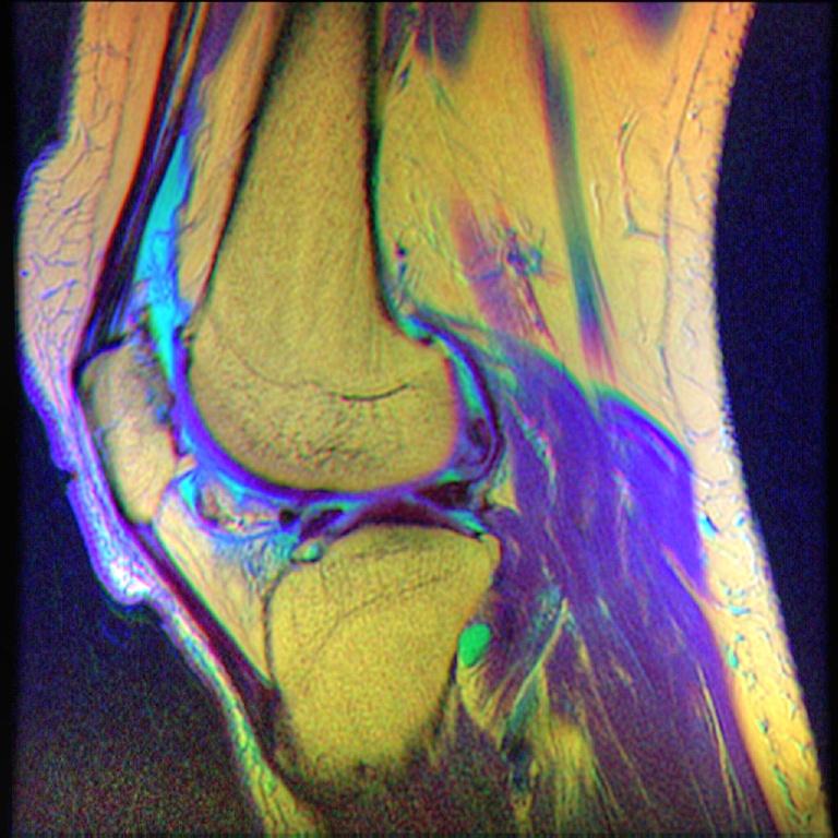 File:Knee MRI, T1T2PD 08.jpg - Wikimedia Commons