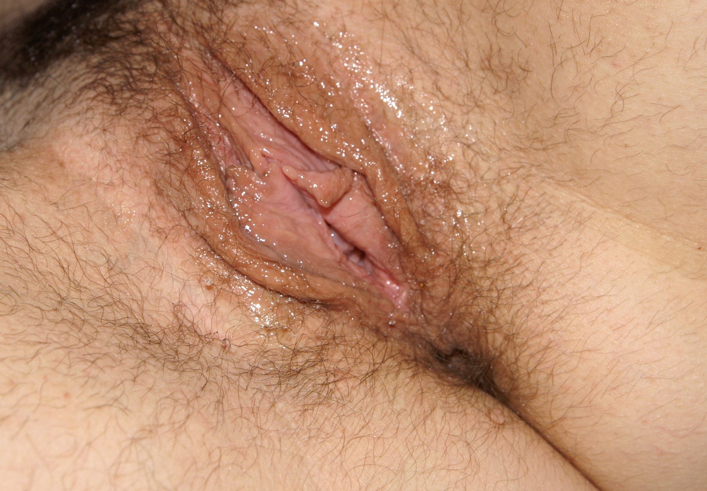 Sexually Aroused Vagina 1stDrugstore