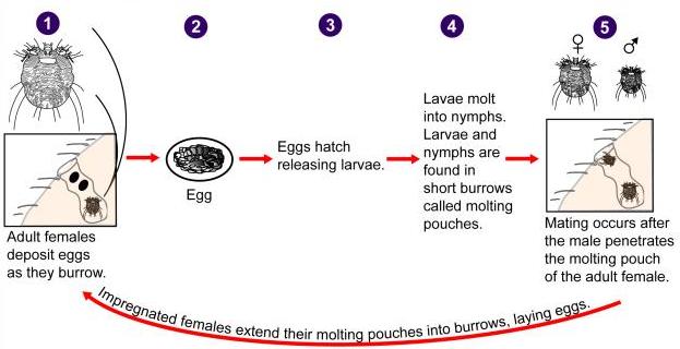 scabies diagram bug scabies diagram