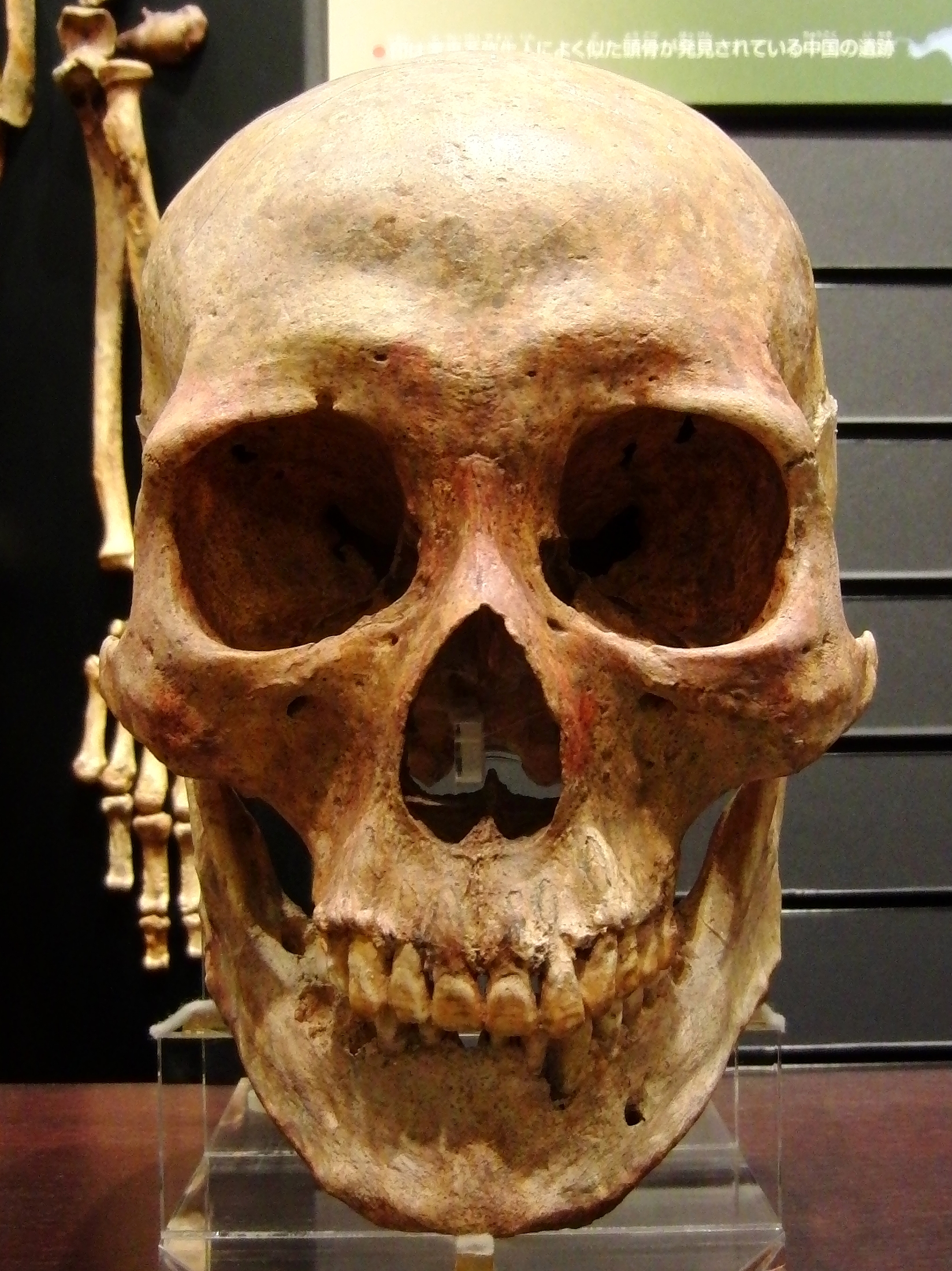 File:Skull of Yayoi people man.jpg - Wikimedia Commons