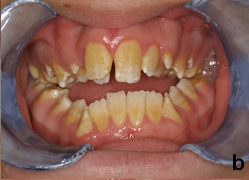 Can Yellow Teeth Become Whiter Naturally