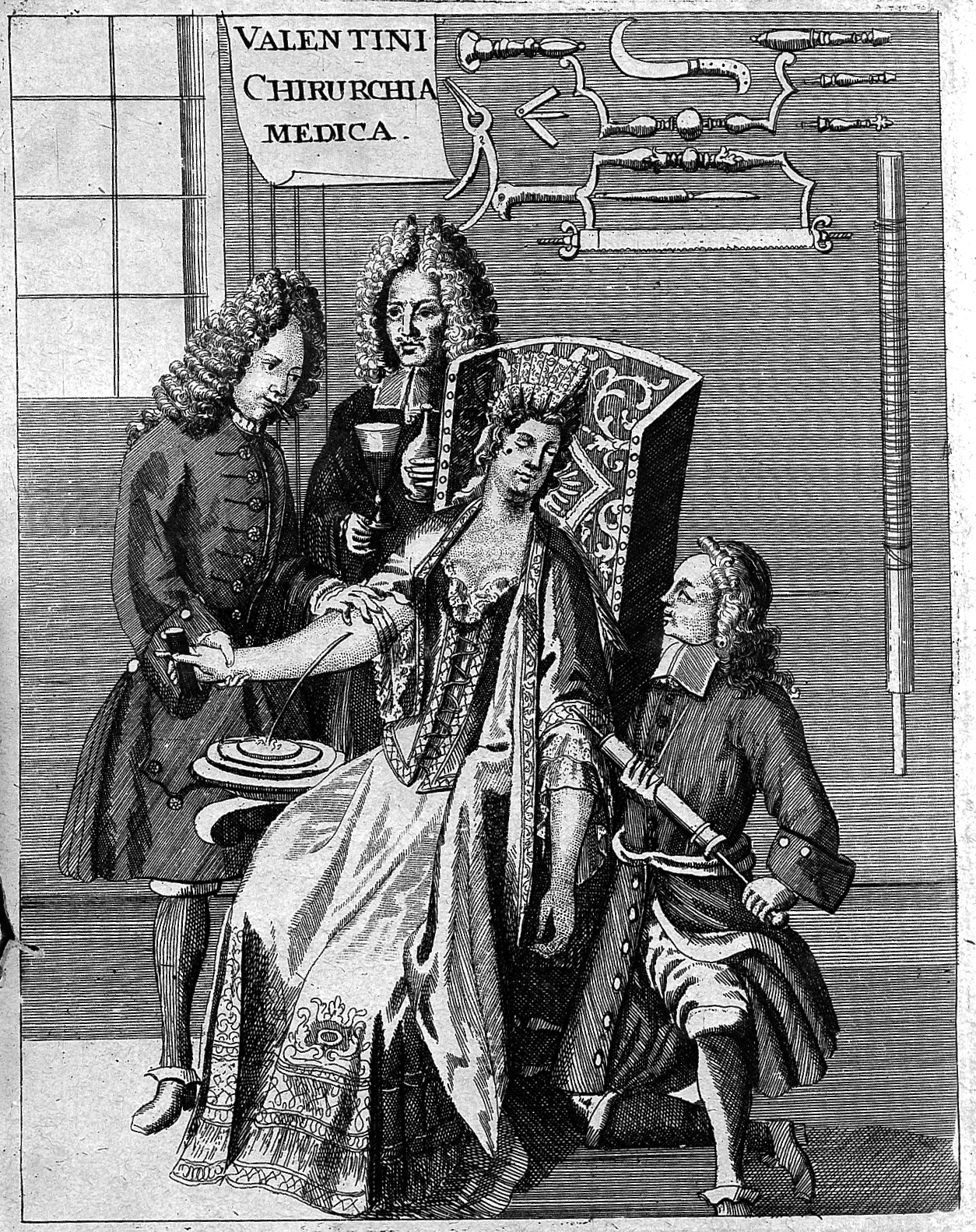 Billedresultat for 18th century blood letting