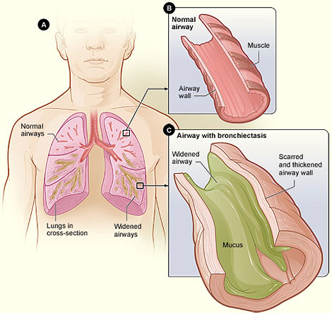 Image of Normal Airway and Airway with Bronchiectasis By National Heart Lung and Blood Institute - National Heart Lung and Blood Institute, Public Domain, https://commons.wikimedia.org/w/index.php?curid=29583169