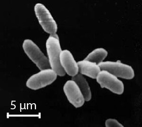 Halobacteria with scale