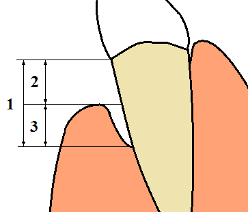 Periodontal terms diagram gingival recession