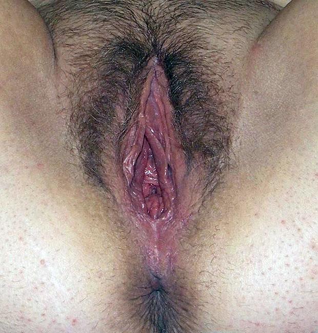 Artificial vagina