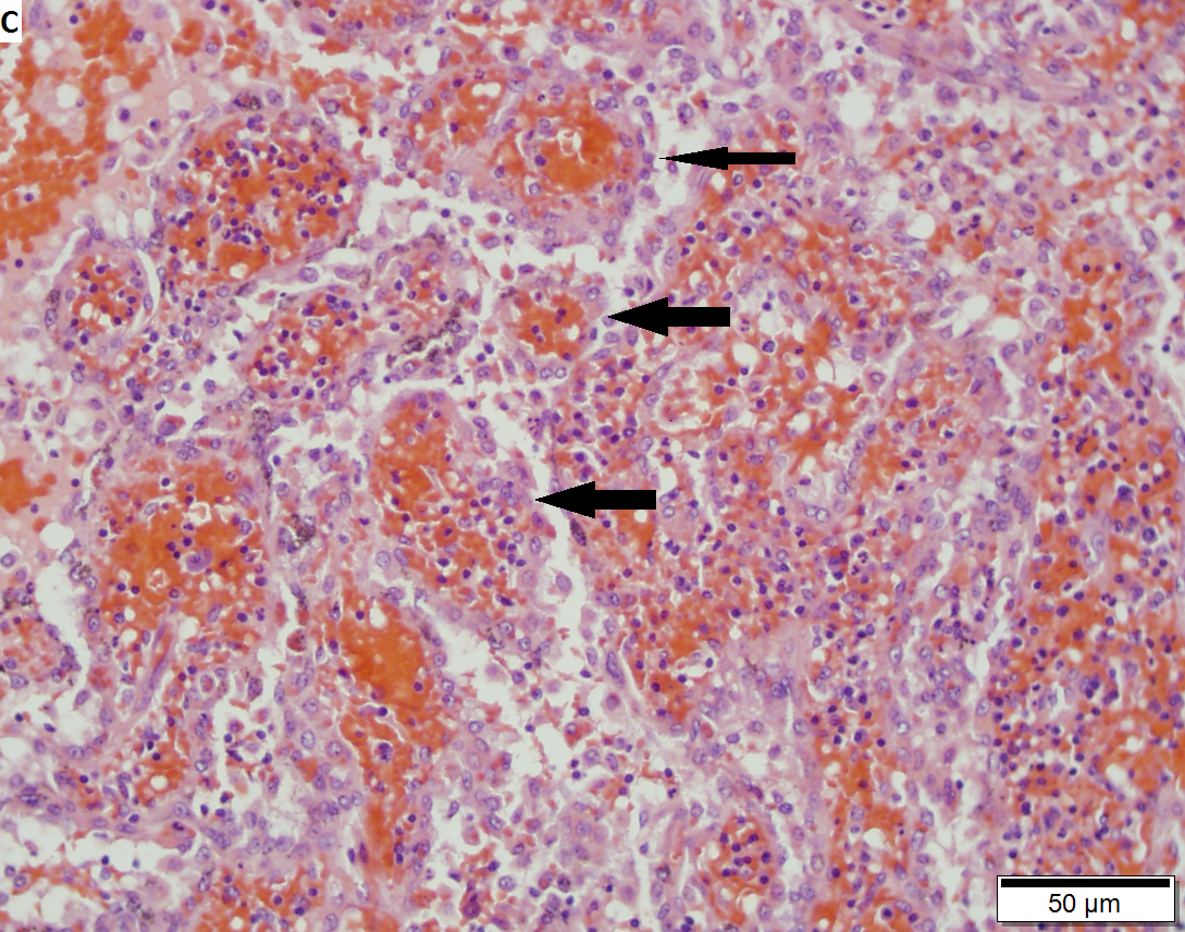Littoral cell angioma of spleen