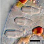 A light micrograph of a small area of a cell containing oblong-shaped un-extruded nematocysts.