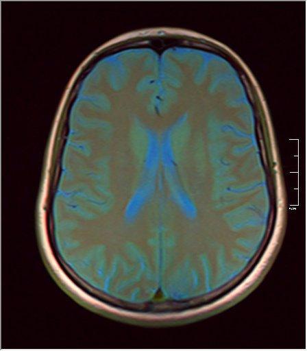 Brain MRI glioma 07.jpg