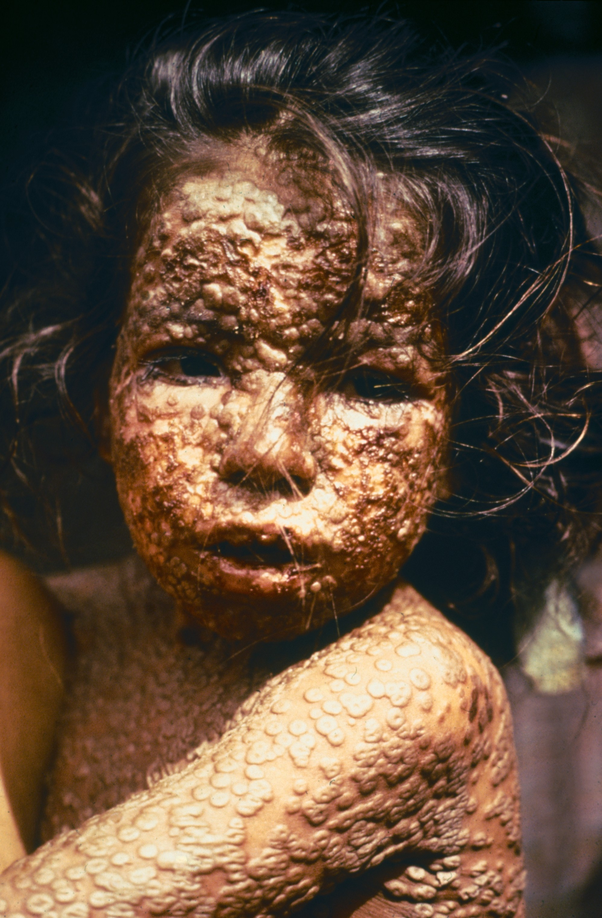 child with the now eradicated small pox in Bangladesh 1973
