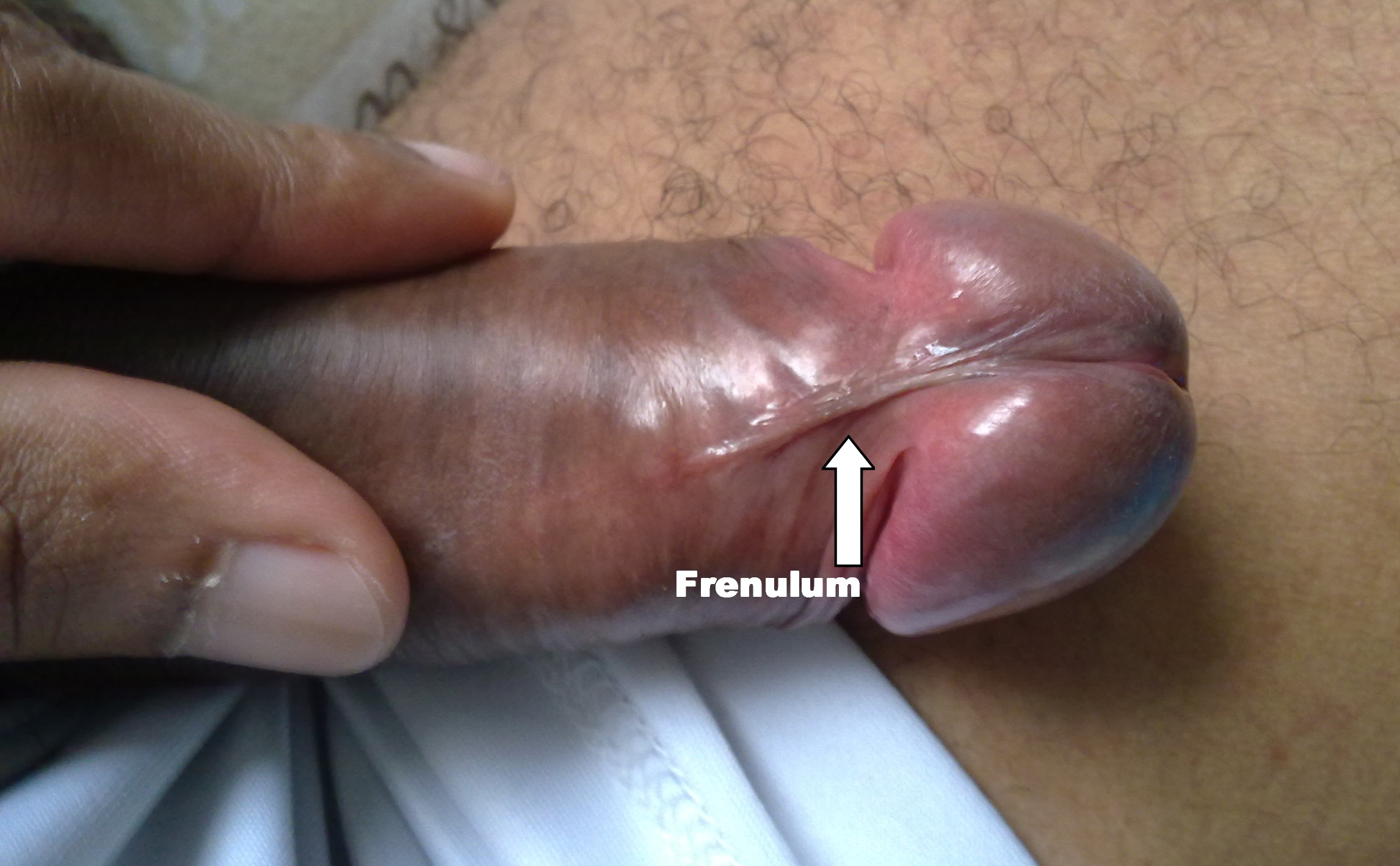 Frenulum On Penis 63