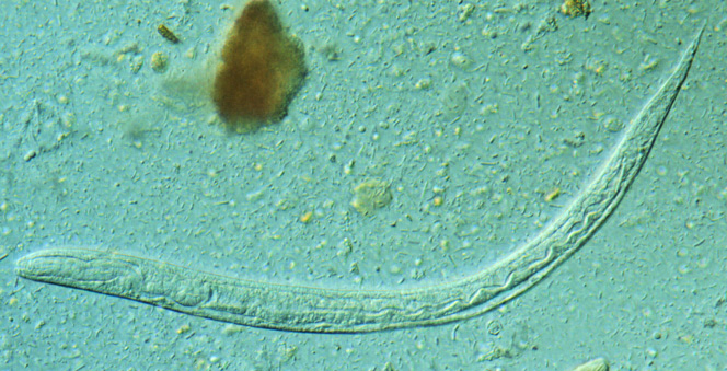 File Strongyloides stercoralis larva jpgStrongyloides Stercoralis