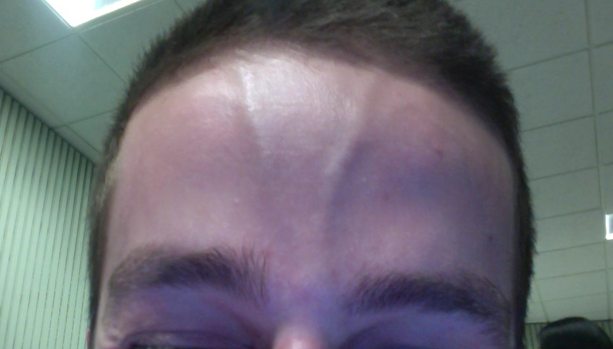 File:Supratrochlear artery forehead.png - Wikimedia Commons