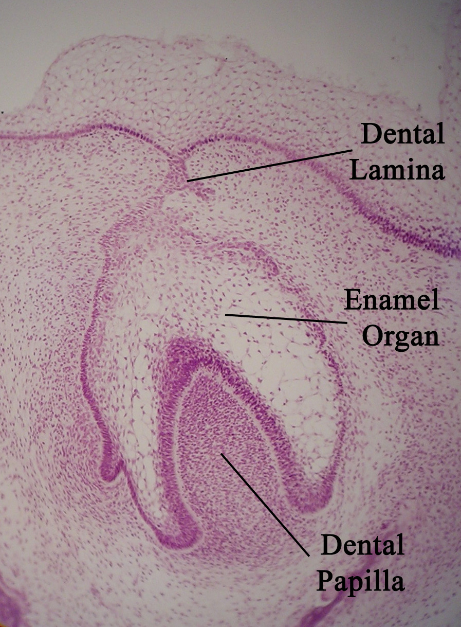 File:Toothhistology11-17-05.jpg - Wikimedia Commons