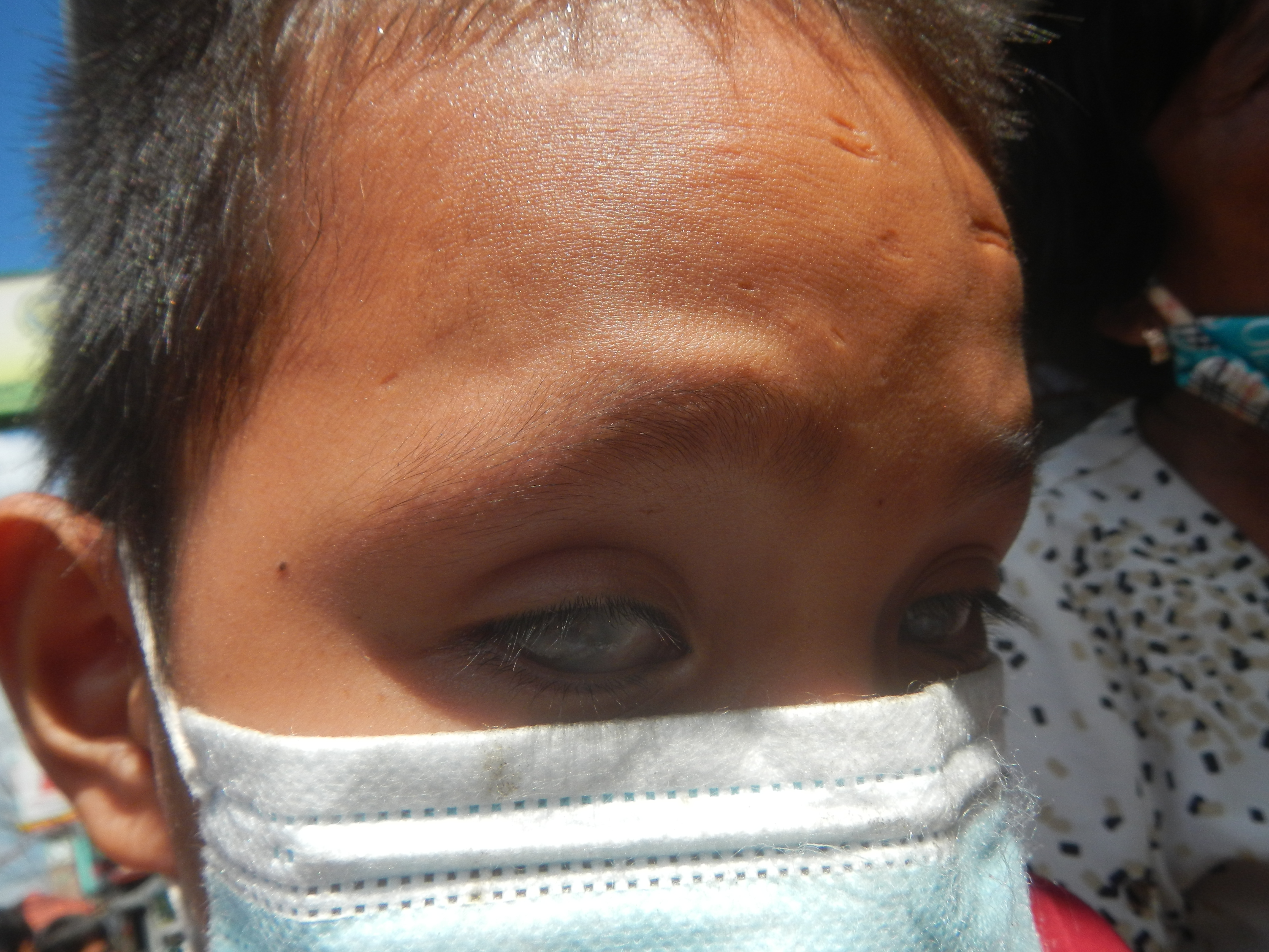 2219Boys of the Philippines with congenital childhood blindness and amputation birth defect 11.jpg