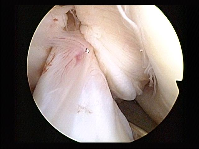 Anterior cruciate ligament (surrounded by synovium) during knee arthroscopy. Lateral epicondylus of the femur can be seen to the right.