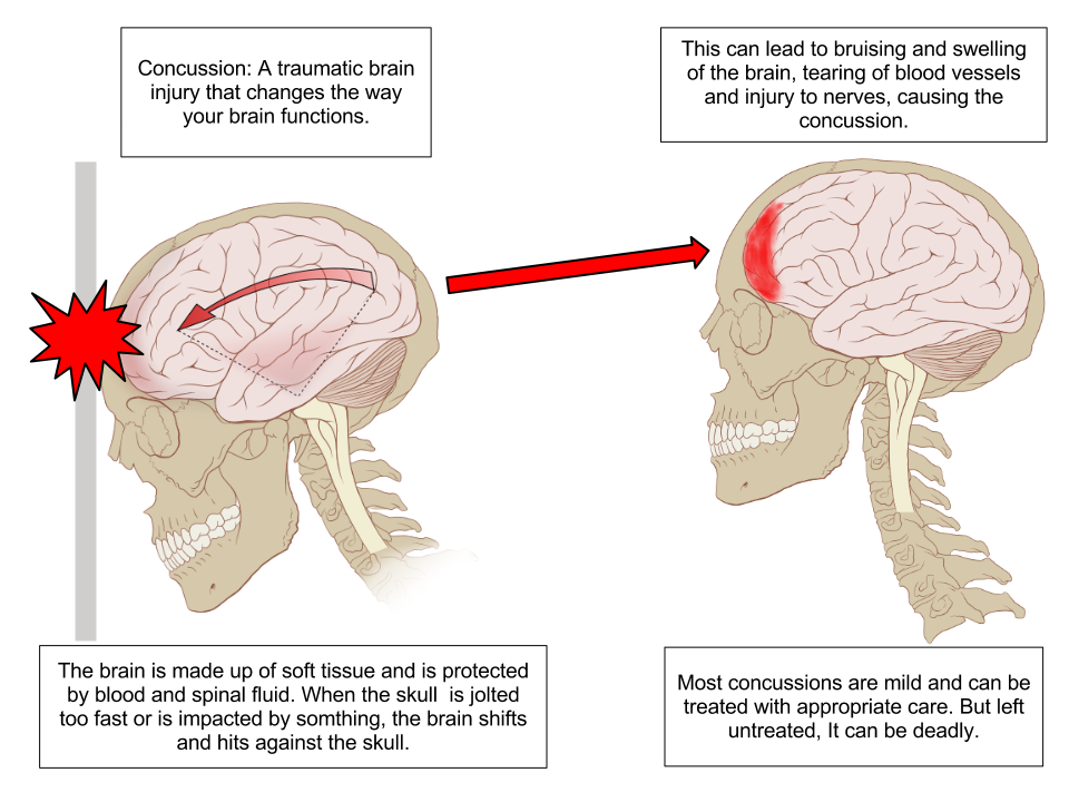 File:Concussion Anatomy.png - Wikimedia Commons