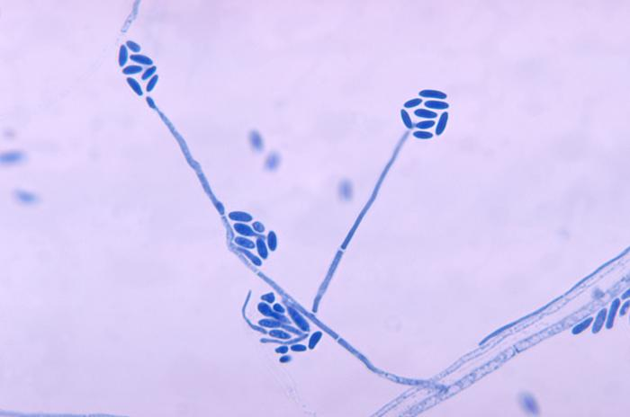 Conidia and conidiophores of the fungus Acremonium falciforme PHIL 4168 lores