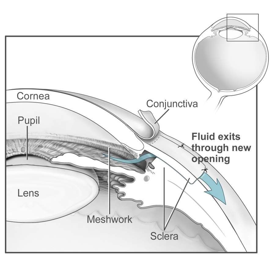Conventional surgery to treat glaucoma EDA11.JPG