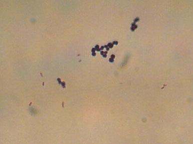 micrococcus luteus