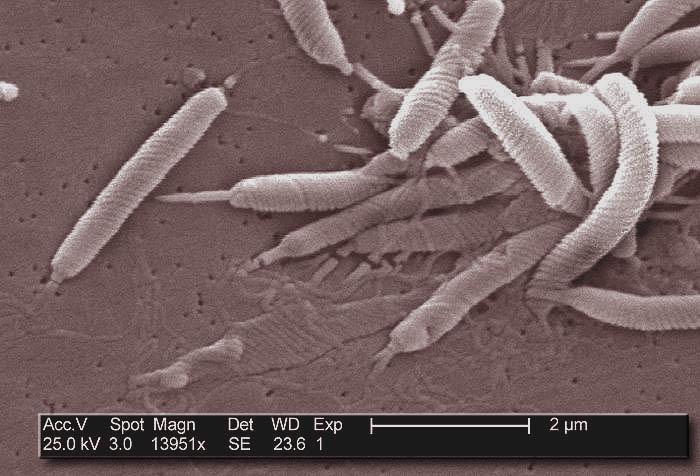 how to detect h pylori bacteria