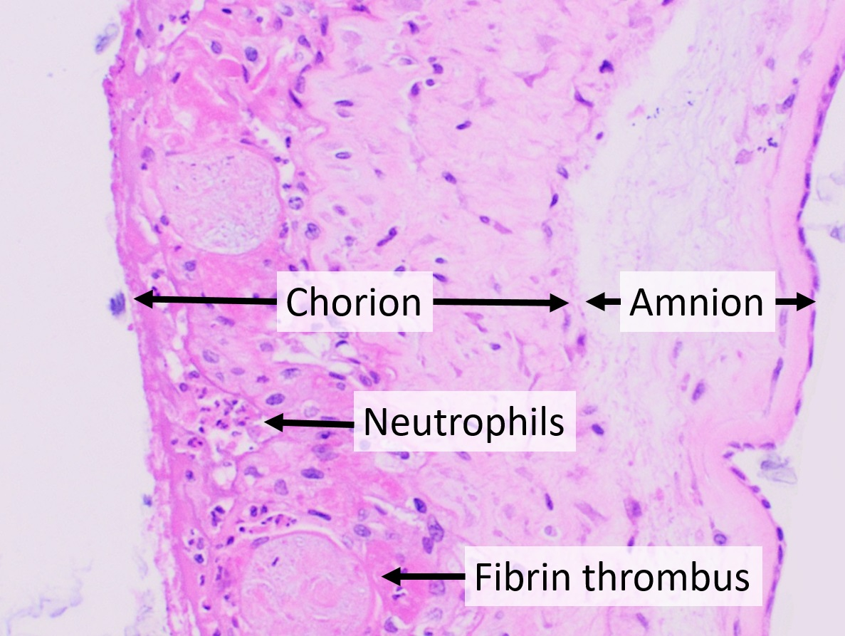 Chorioamnionitis   Wikiwand