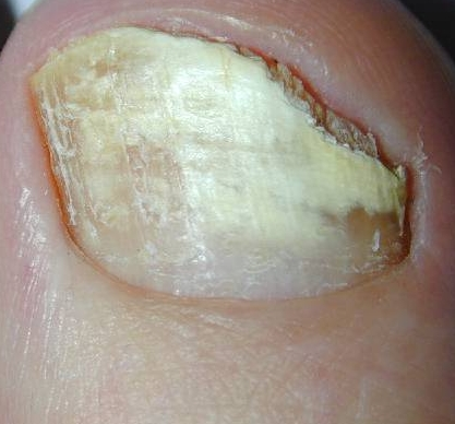 Fungo di unghie su ununghia solo un pollice