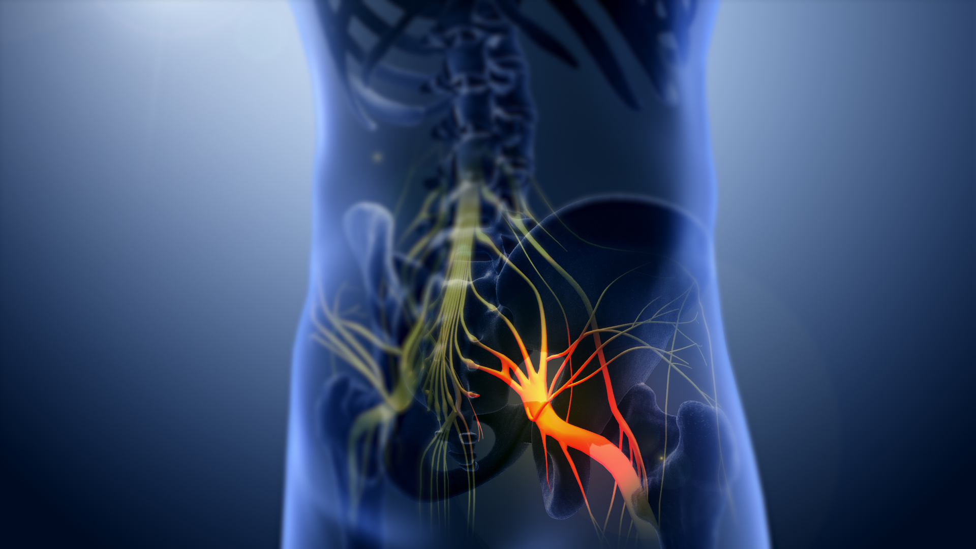 File:3D still showing Sciatica nerve.jpg - Wikipedia