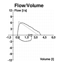 Bad spirometry flow volume curve.png