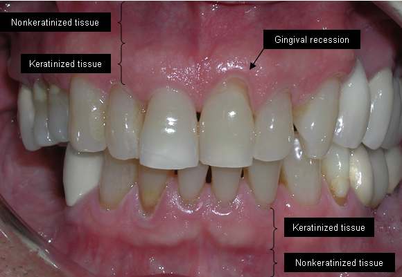 Can Bone Loss In Teeth Be Reversed Naturally