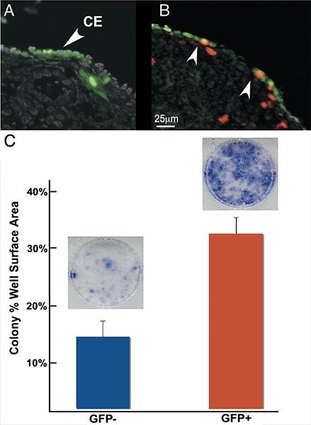 ovarian cancer epithelial cells)