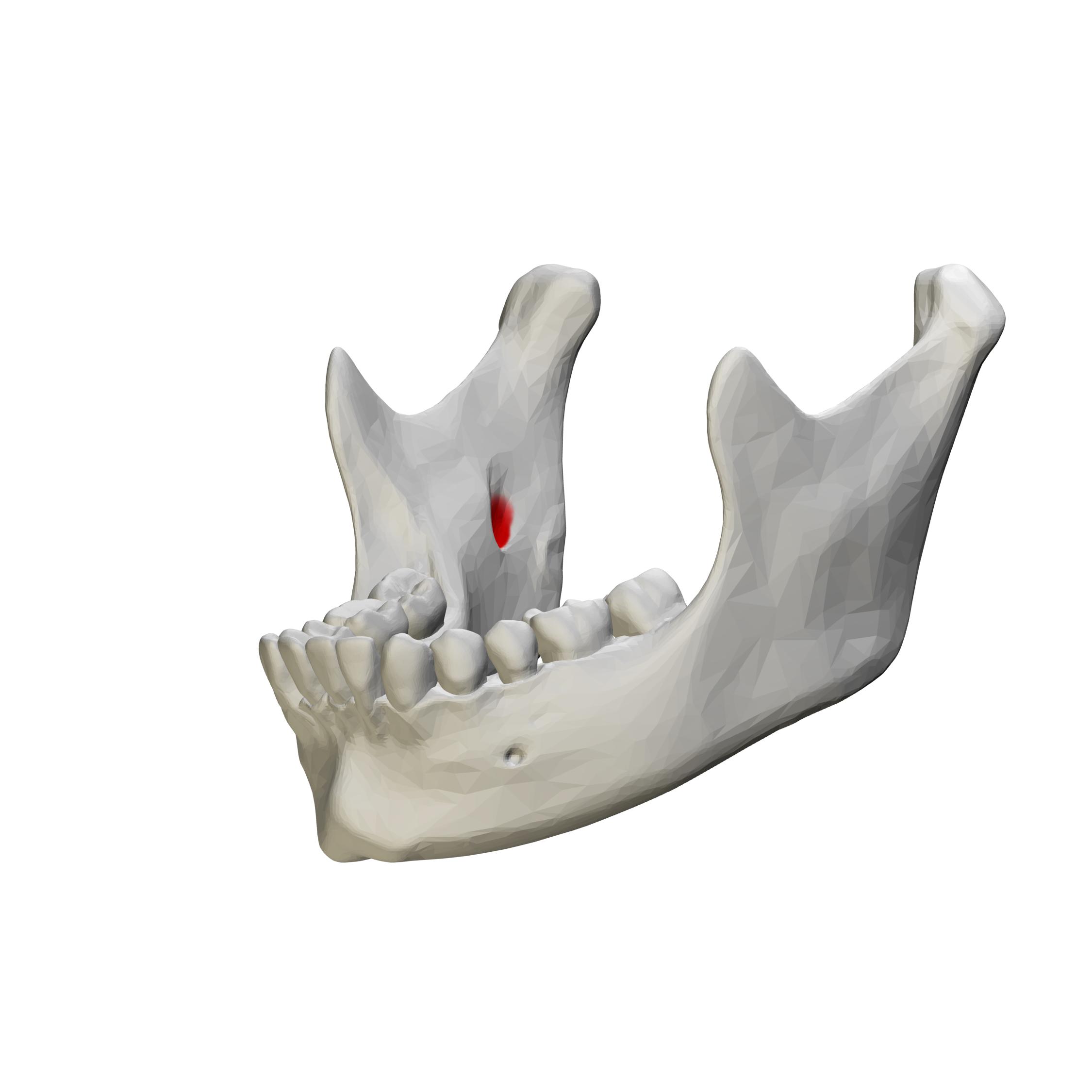 Filemandibular Foramen Close Up Anterolateral Viewg