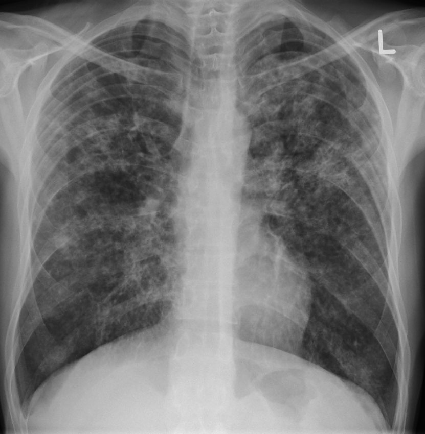 Image Result For Lung Cancer Xray