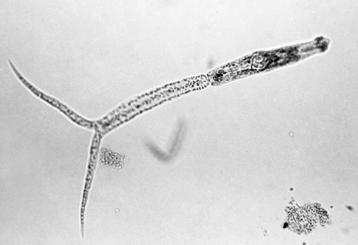 Schistosomiasis bilharziose), Traducere