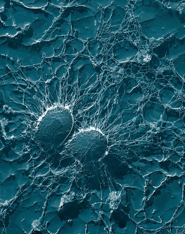 Streptococcus Mutans Natural Treatment