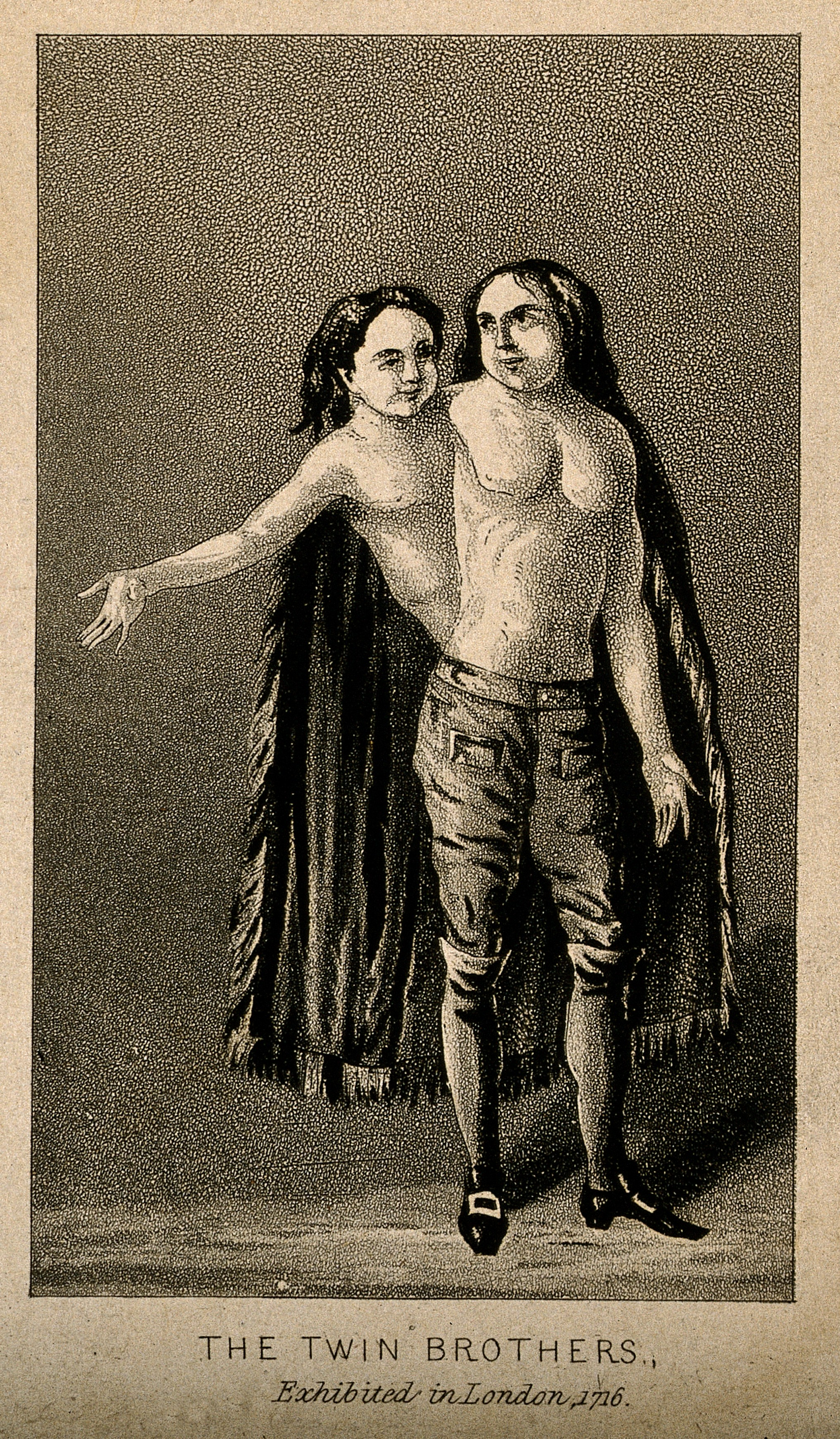File:A man with two heads and two trunks, 1716. Aquatint. Wellcome  V0007387.jpg