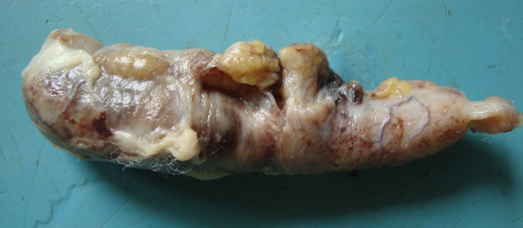 file acute appendicitis gross pathology jpg wikimedia commons