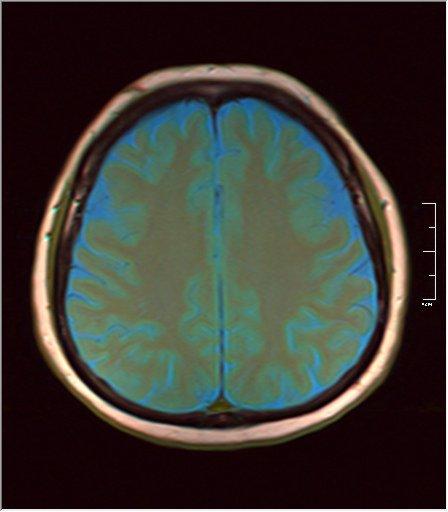 Brain MRI 0133 05.jpg