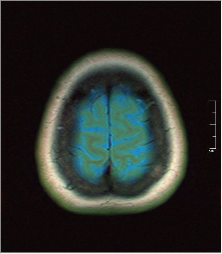 Brain MRI 0145 01.jpg