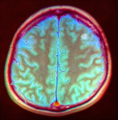 Brain MRI 143937 rgbcb ce