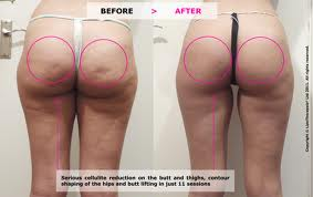 an image of Cellulite File:Butt cellulite images.jpg