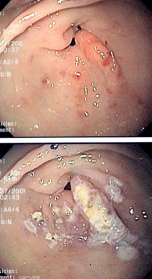 endoscope showed irritation bottom of stomach