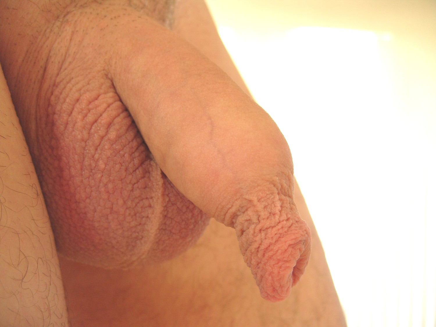 Does like look penis uncircumcised something is