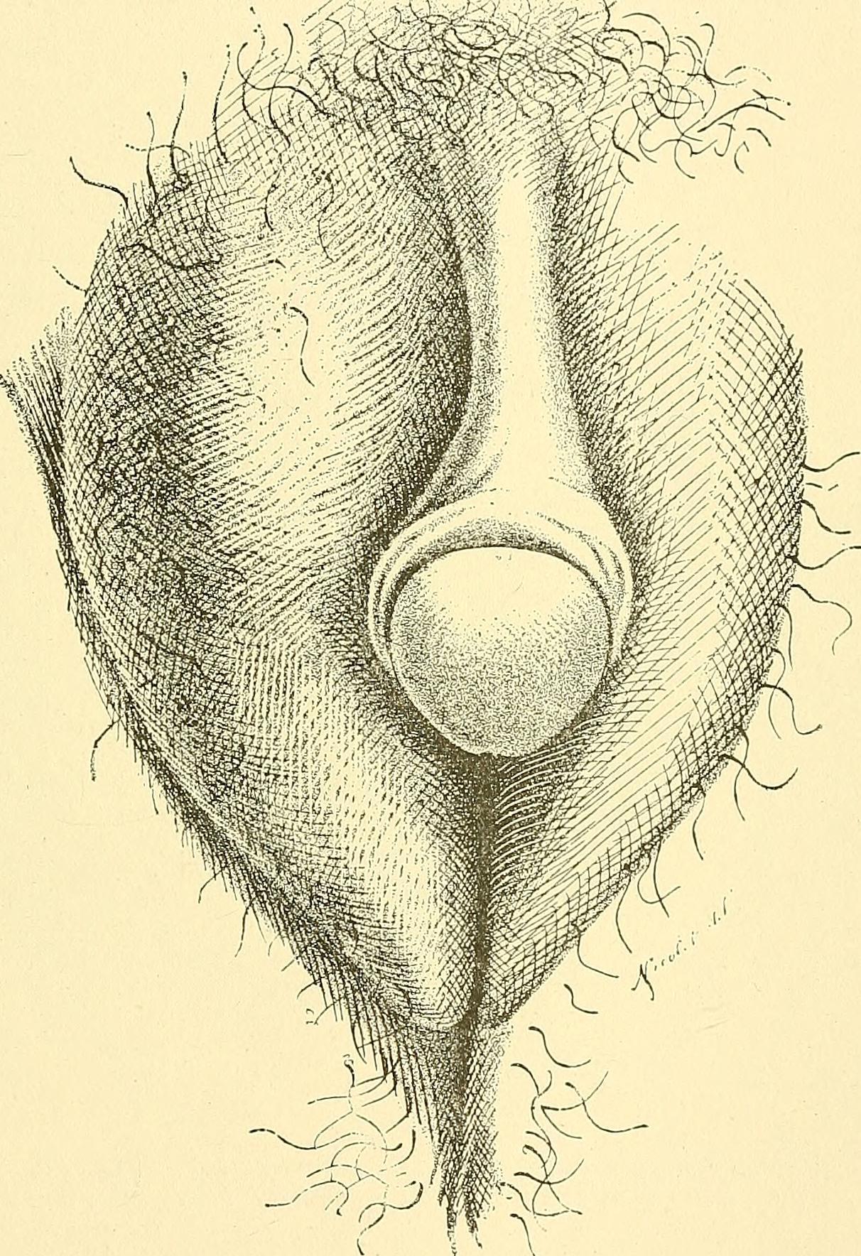 stroenie-germafrodita