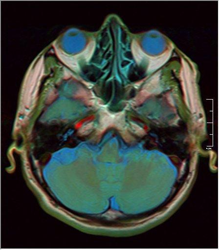 Brain MRI 0211 16.jpg