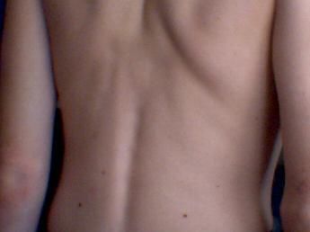 File:Human back.jpg - Wikimedia Commons