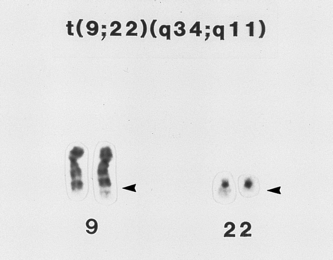 FilePhiladelphia Chromosome T922 Translocation