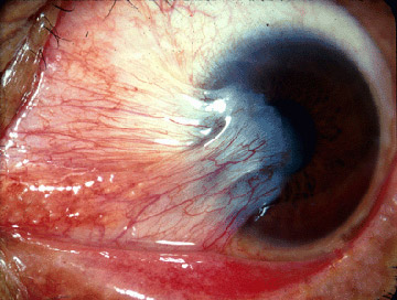 File:Pterygium (from Michigan Uni site, CC-BY).jpg