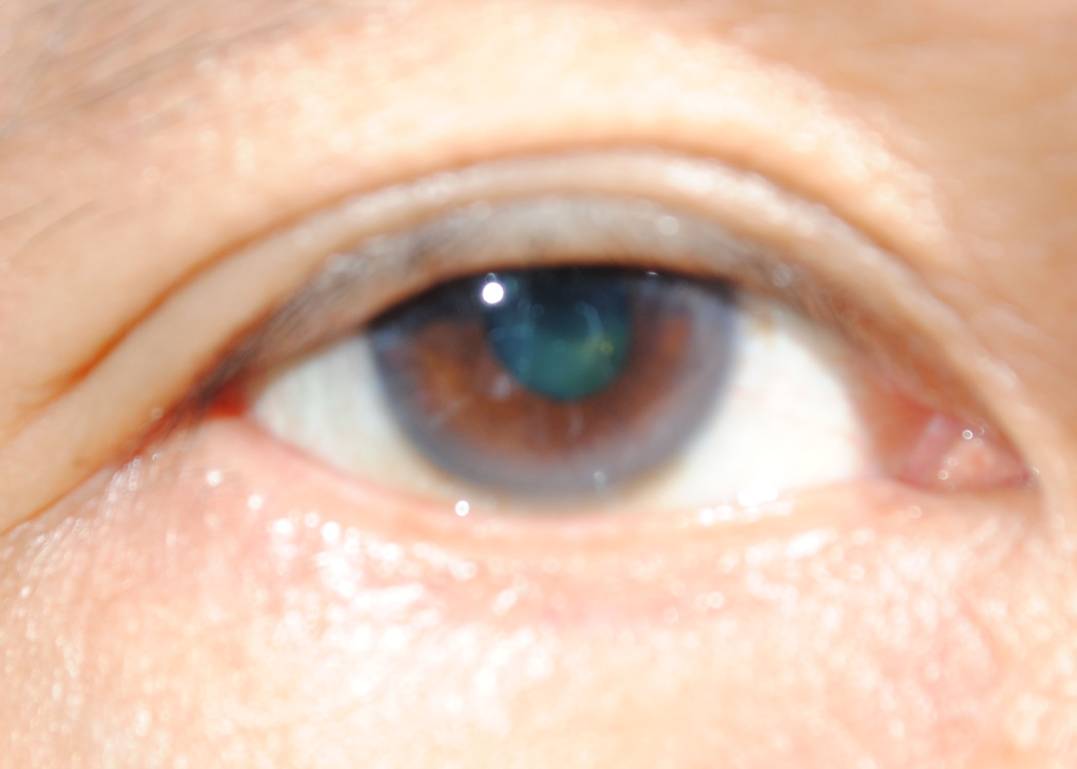 ... -colors in the eye's pupil, cornea and iris I.jpg - Wikimedia Commons Brown Eyes Iris